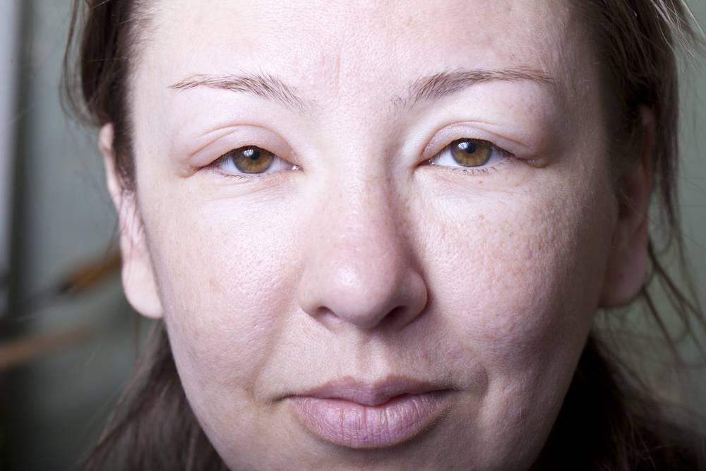 Цвет лица: бледный, землистый, желтый, красный, синий, черный. причины, диагностика