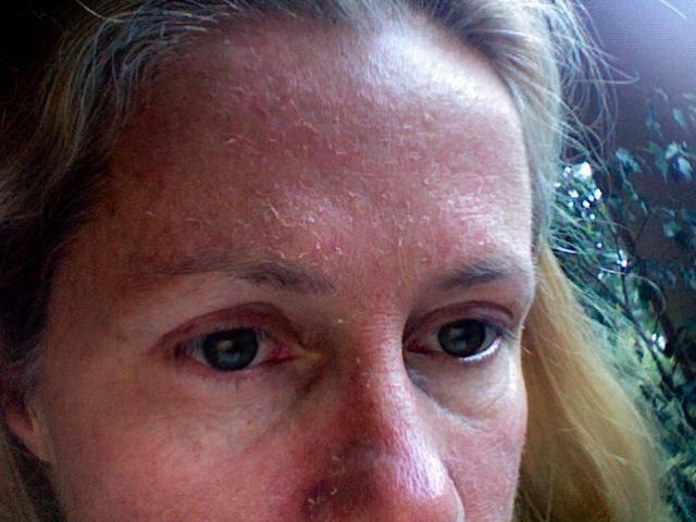 Как устранить сухость кожи вокруг рта?