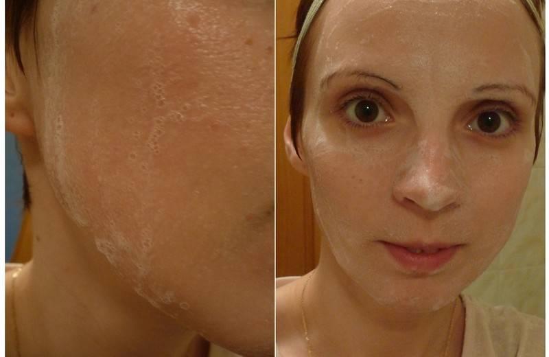 Совершенная кожа вместе с хлористым кальцием
