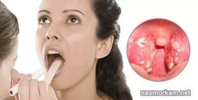 В горле белые комочки с неприятным запахом — лечение в домашних условиях
