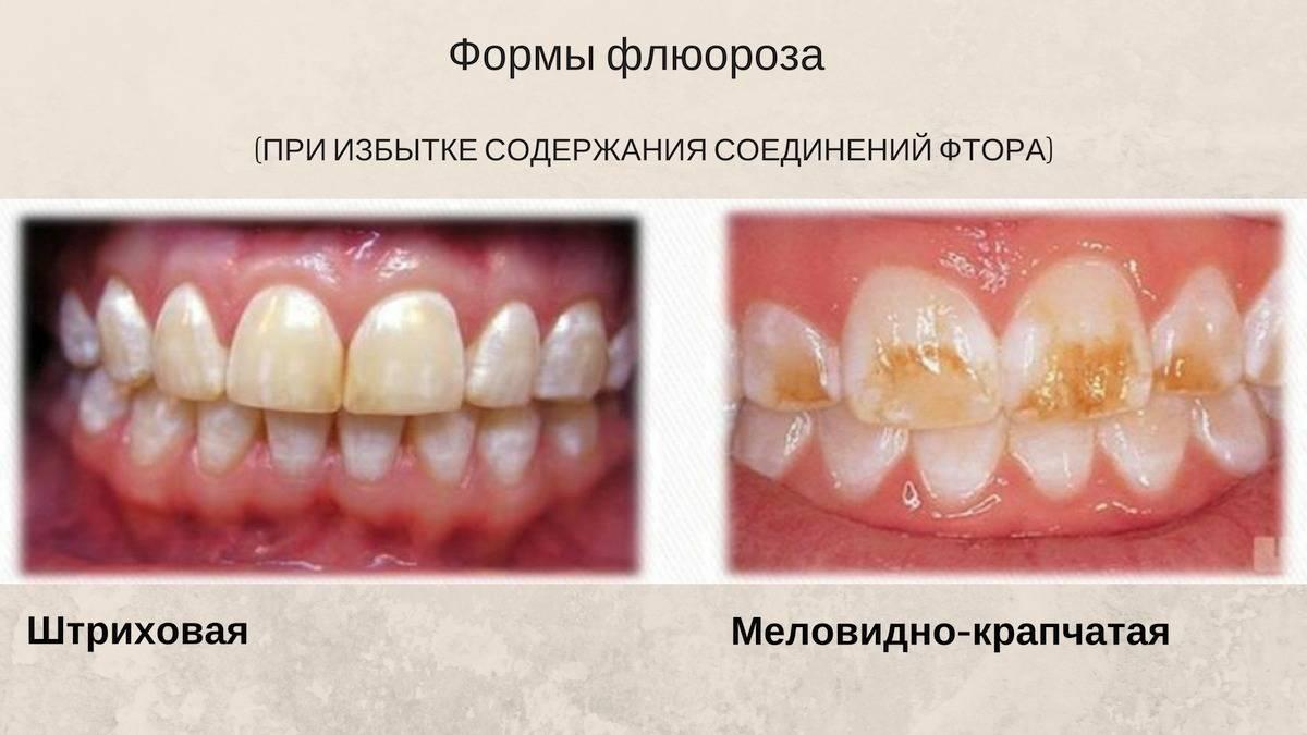 Чем грозит недостаток и переизбыток фтора для зубов — каково его влияние на эмаль?