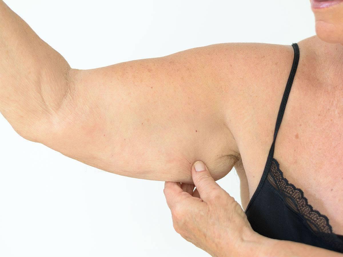Как подтянуть обвисшую кожу после похудения