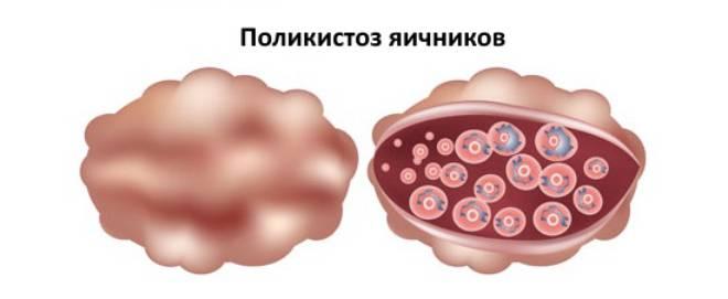 Как забеременеть при мультифолликулярных яичниках: симптоматика и методы лечения