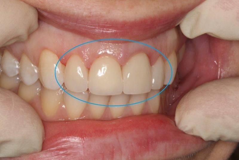 О сепарации зубов и зачем ее проводят в ортодонтии?