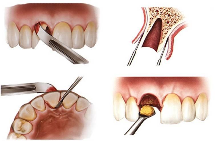 Фото и правила ухода за лункой после удаления зуба