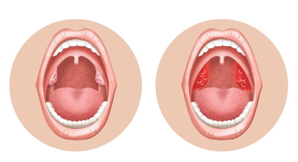 Как выглядит новообразование миндалин, диагностика и способы лечения