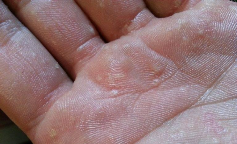 Мокнущая экзема – лечение, фото на руках и ногах