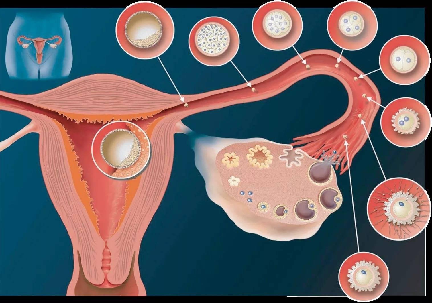Как выявить и вылечить кисту желтого тела яичника?