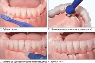 Правильный уход за имплантами зубов после установки