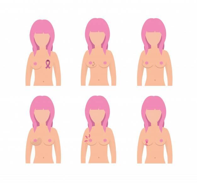 Грудь в 14 лет. анатомия и физиология детей и подростков. когда начинает расти грудь у девочек