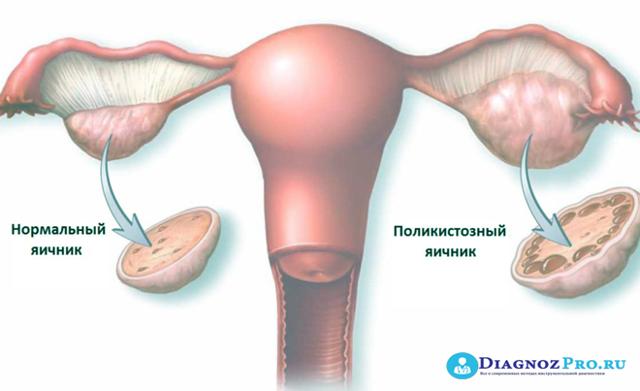 Лапароскопия яичника. диагностическая лапароскопия яичников, удаление яичника методом лапароскопии, удаление кисты яичника. показания, противопоказания, преимущества метода и реабилитация