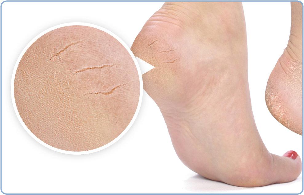 Сухие пятки: причины сухости кожи, что делать в домашних условиях