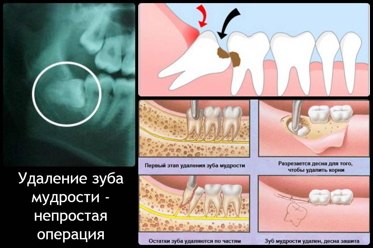 Удалили зуб мудрости болит ухо горло что делать