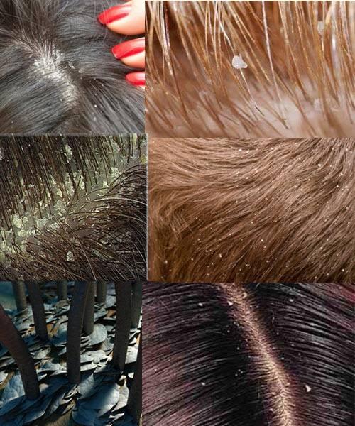 Симптомы и лечение жирной себореи на лице и на волосистой части головы