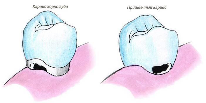 Кариес на корнях зубов