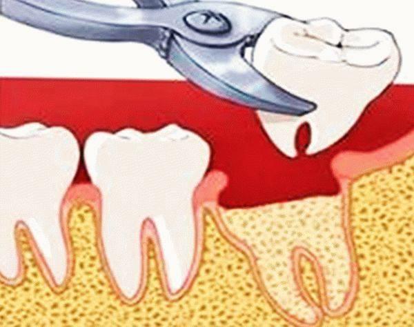 Осложнения можно избежать! удаление зуба мудрости: что делать после операции?