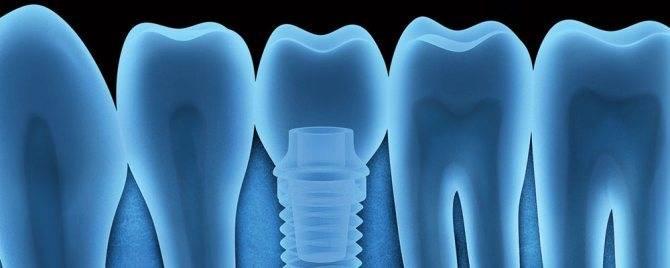 Гарантия на импланты зубов по закону рф