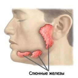 Слюннокаменная болезнь: диагностика и лечение слюнного камня