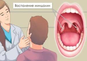 Увеличены гланды но горло не болит: причины и способы лечения