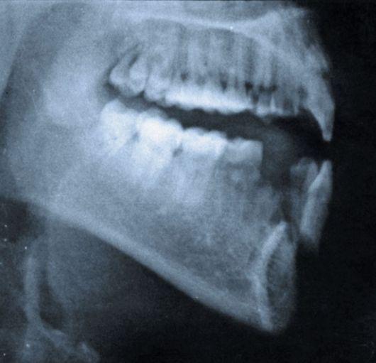 Перелом верхней и нижней челюсти