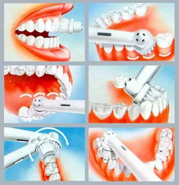 Массаж десен при пародонтозе, пародонтите и после удаления зубов: техника проведения с видео