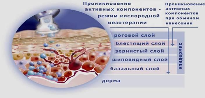 Озонотерапия для лица и волос: отзывы об уколах