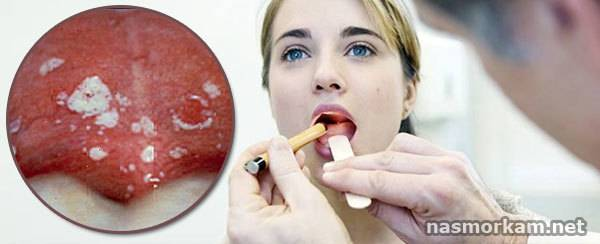 Язвочки во рту: причины появления и способы лечения