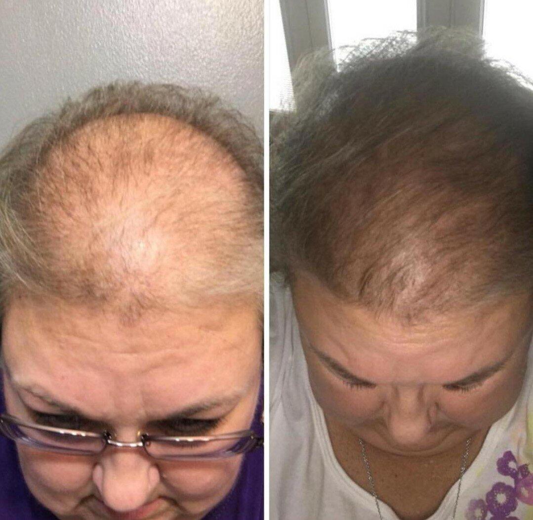 Что делать, если началось выпадение волос при климаксе и как остановить эту беду?