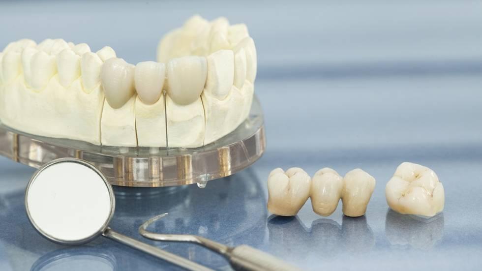 Восстановление зубов — можно ли восстановить зуб, обзор цен