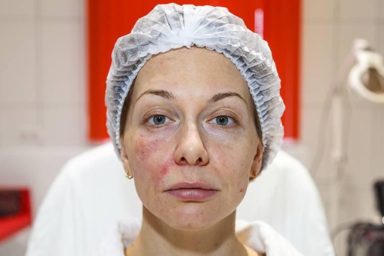 Через сколько нужно делать чистку лица перед пилингом или можно сразу