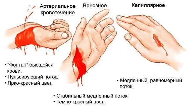 Почему кровь долго не останавливается при порезе