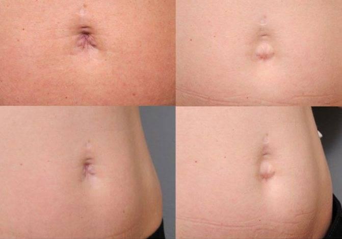 Пупочная грыжа после родов: признаки, стадии, лечение