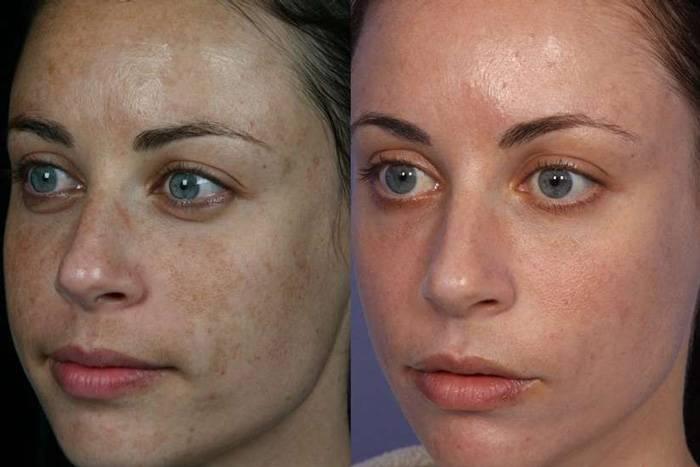 Реальные отзывы с фотографиями до и после удаления пигментации лазером