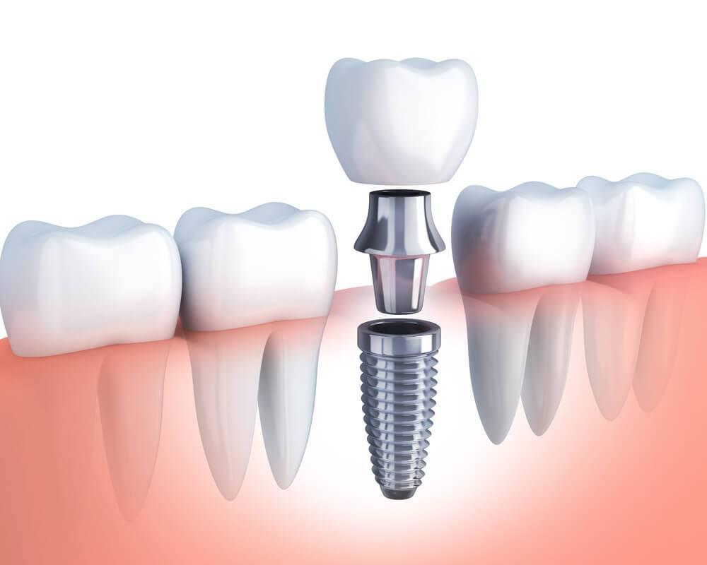 Имплантация зубов верхней челюсти