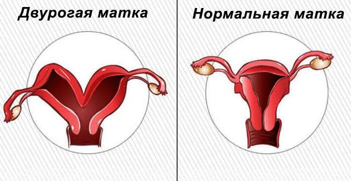 Виды, причины, диагностика и особенности беременности при двурогой матке