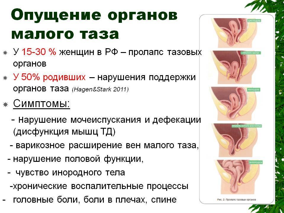 Признаки и угроза опущения матки после родов