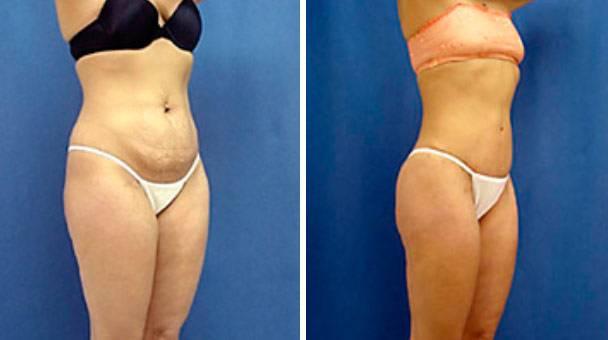 Что такое торсопластика и каков ее эффект? фото до и после