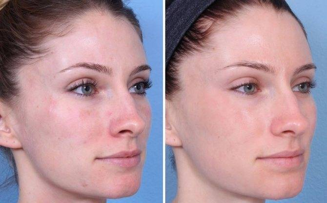 Когда и как проводят броссаж лица?