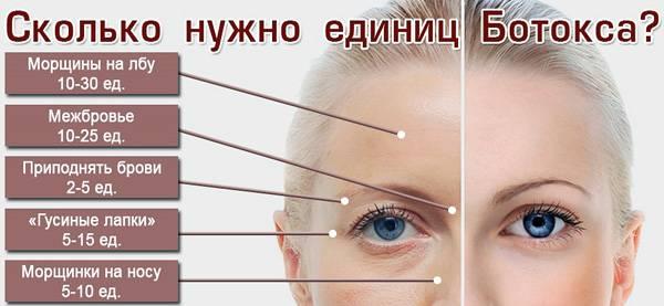 Куда можно колоть ботокс на лице – схема введения уколов