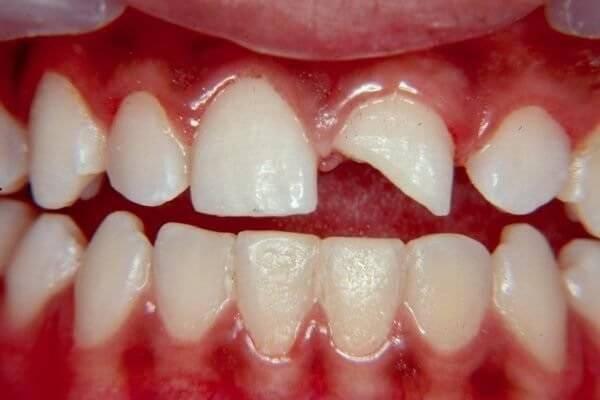 Что такое неполный вывих зуба и почему происходит — симптомы и методы терапии