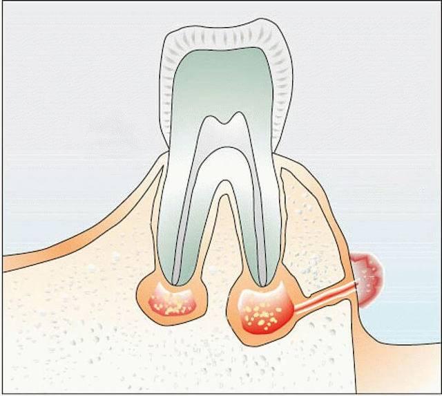 Симптомы и лечение кисты десны зуба