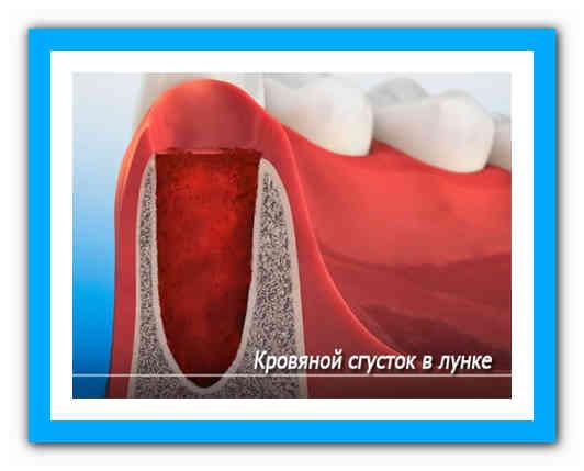 Последствия удаления зуба: сколько держится сгусток крови и как быть, если он выпал, как выглядит грануляционная ткань?