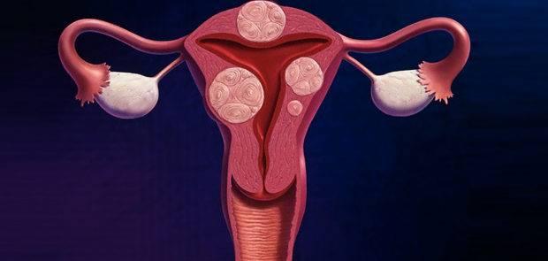 Три основных подхода к лечению миомы матки