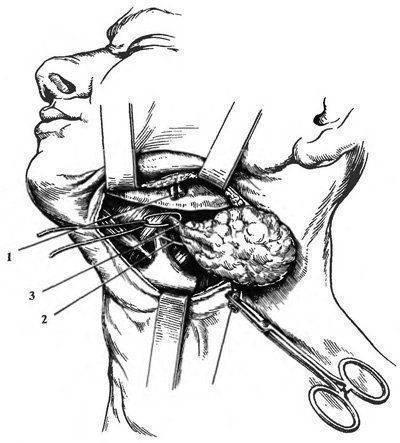 Лечение сиалоаденита (воспаления слюнной железы)