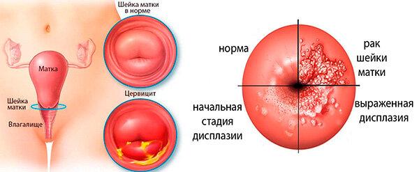 Важные аспекты лечения эрозии шейки матки нерожавшим