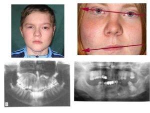 Рак челюсти — симптомы, как распознать, лечение