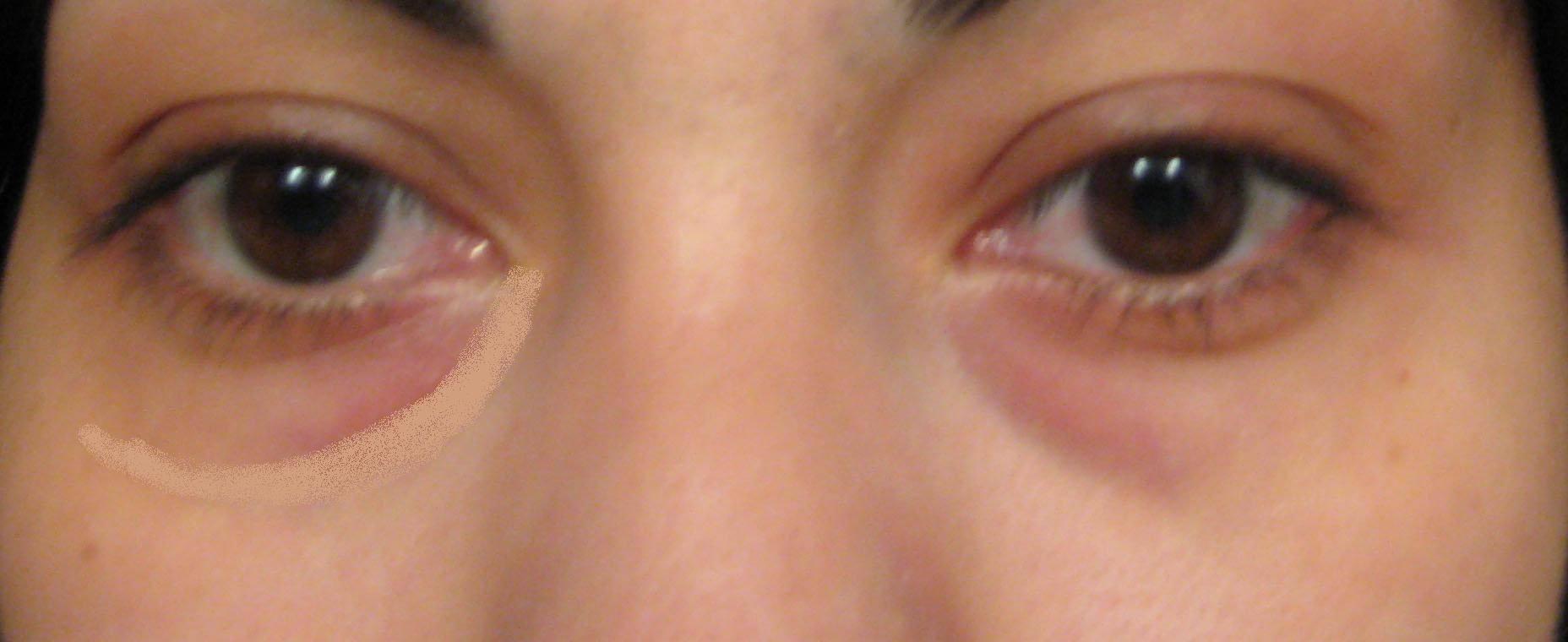 Мешки под глазами, причины появления и что делать
