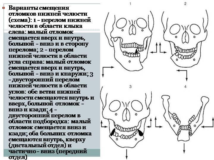 Лечение перелома верхней челюсти