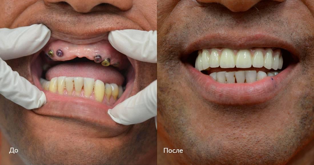 Температура после имплантации зубов