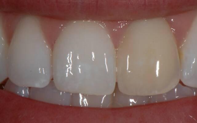 Мертвый зуб реагирует на холодное